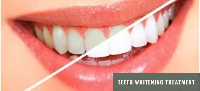 Brief Idea about Teeth Whitening Treatment