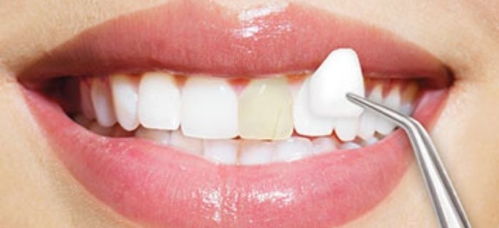 considering-porcelain-veneers-for-a-great-smile