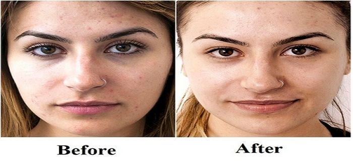 Learn About Laser Resurfacing