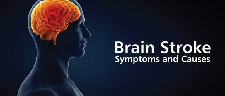 10 Brain Stroke Symptoms that Serve as Indicative Warnings