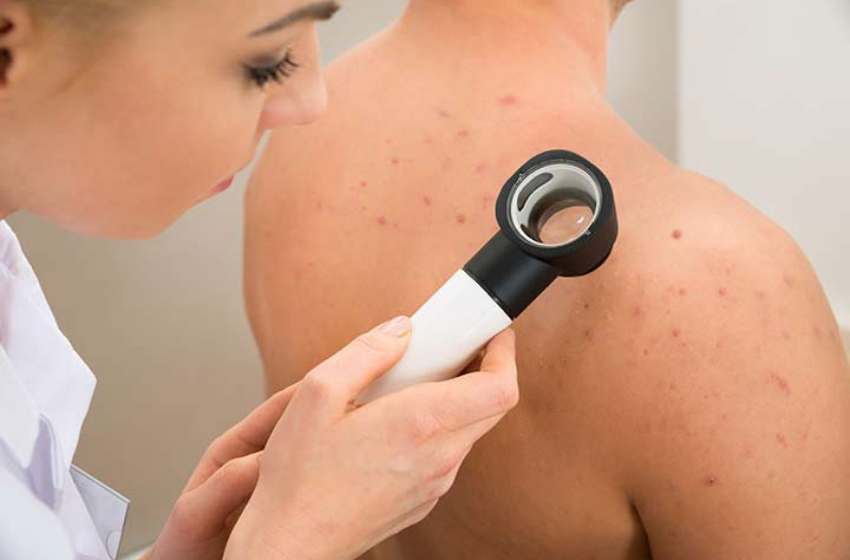 Can Skin Conditions help You Detect an Illness
