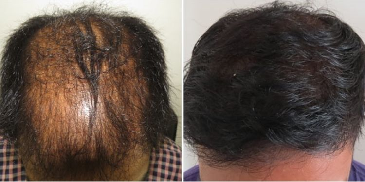 Hair Transplant: How to Caring for Your Hair After a Transplant