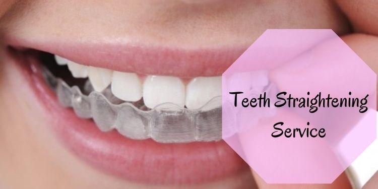 Teeth Straightening Service