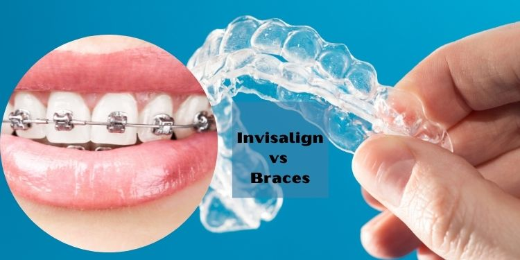 Invisalign vs Braces: What Is Best for You