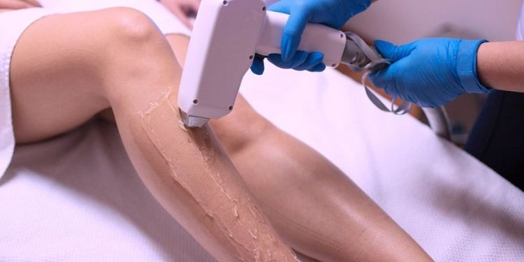 Is Laser Hair Removal Permanent?